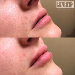ParisPlump.Lips.Filler.Scottsdale.AZ.Beforeandafter.ParisInjectables.10