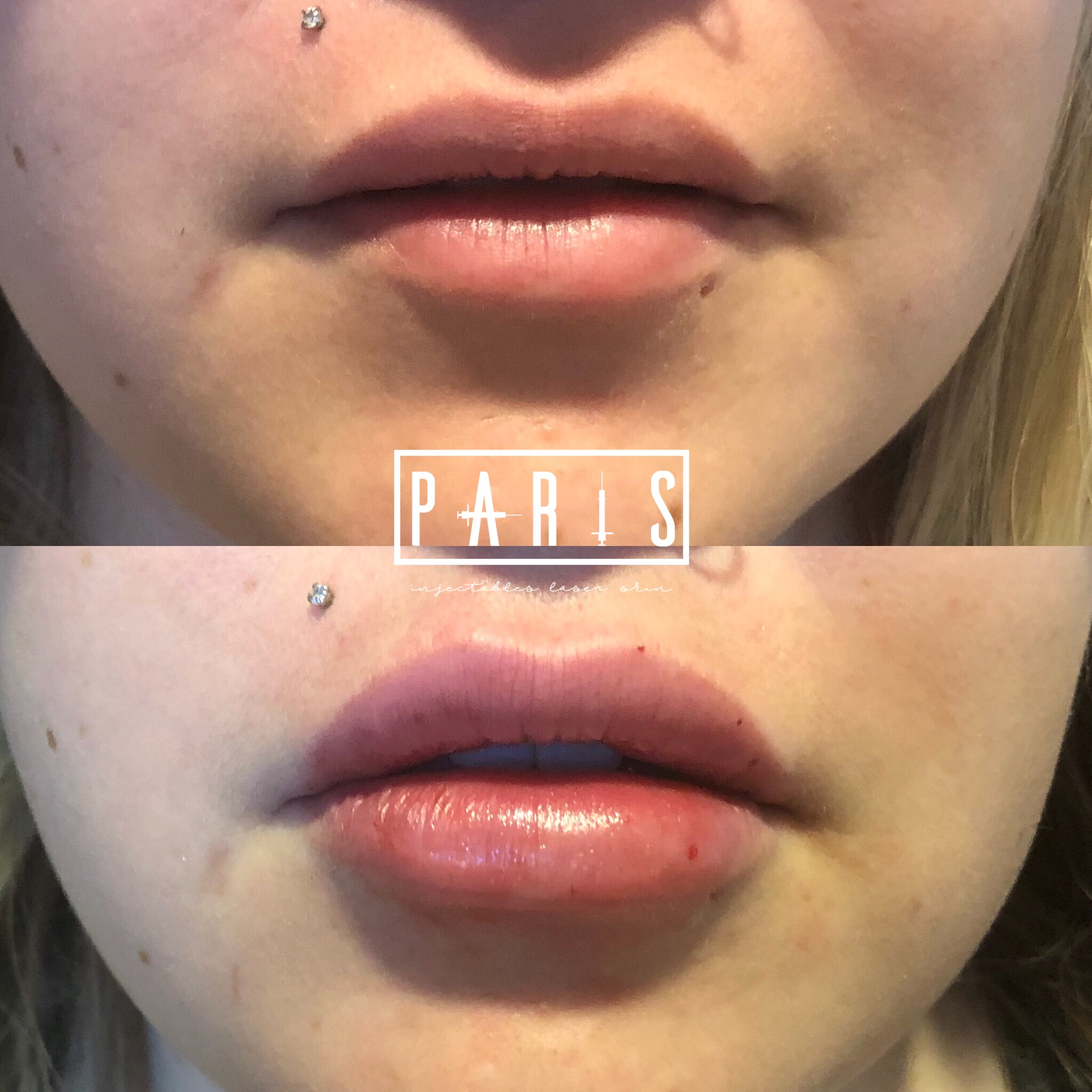 ParisPlump.Lips.Filler.Scottsdale.AZ.Beforeandafter.ParisInjectables.32