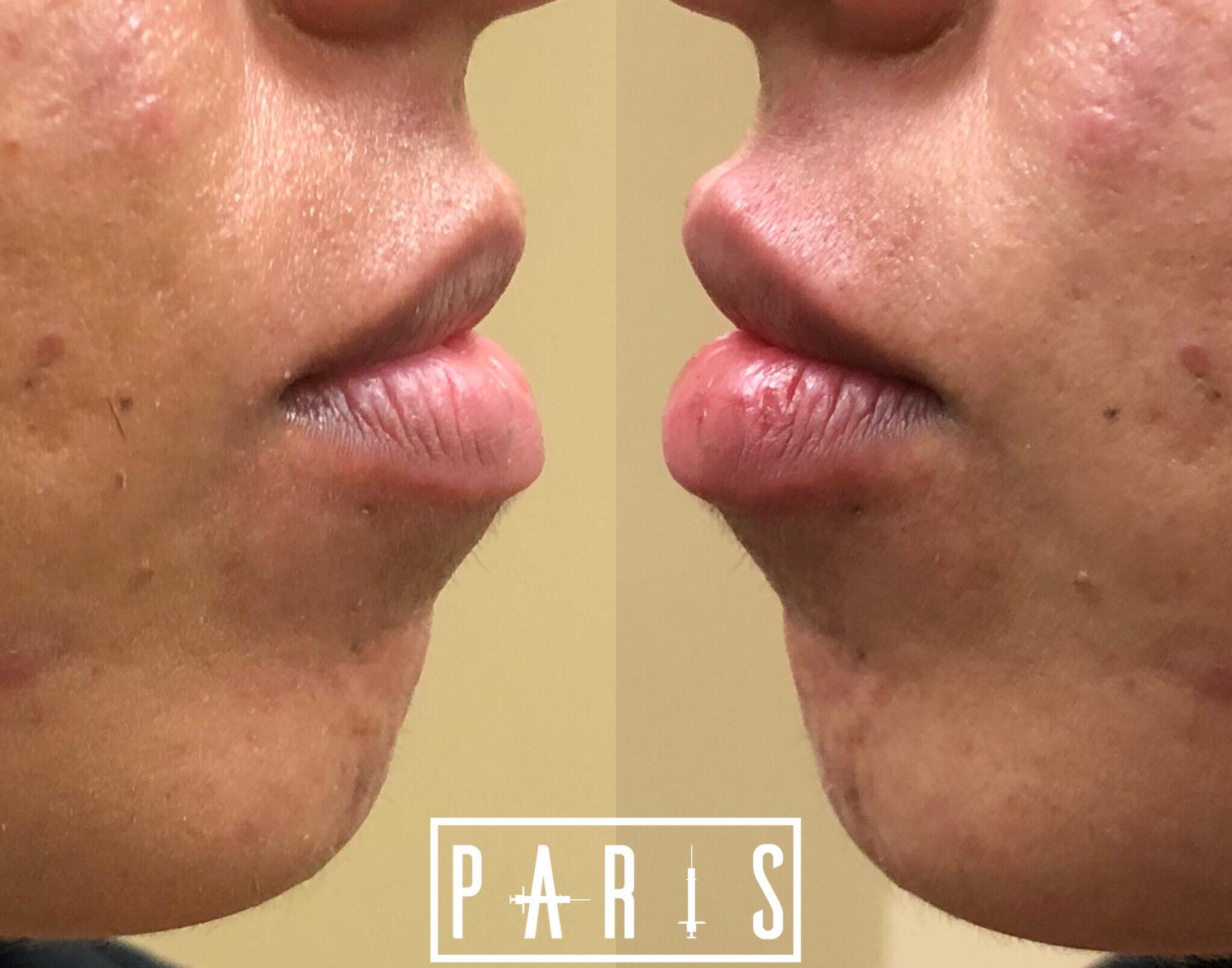 ParisPlump.Lips.Filler.Scottsdale.AZ.Beforeandafter.ParisInjectables.27