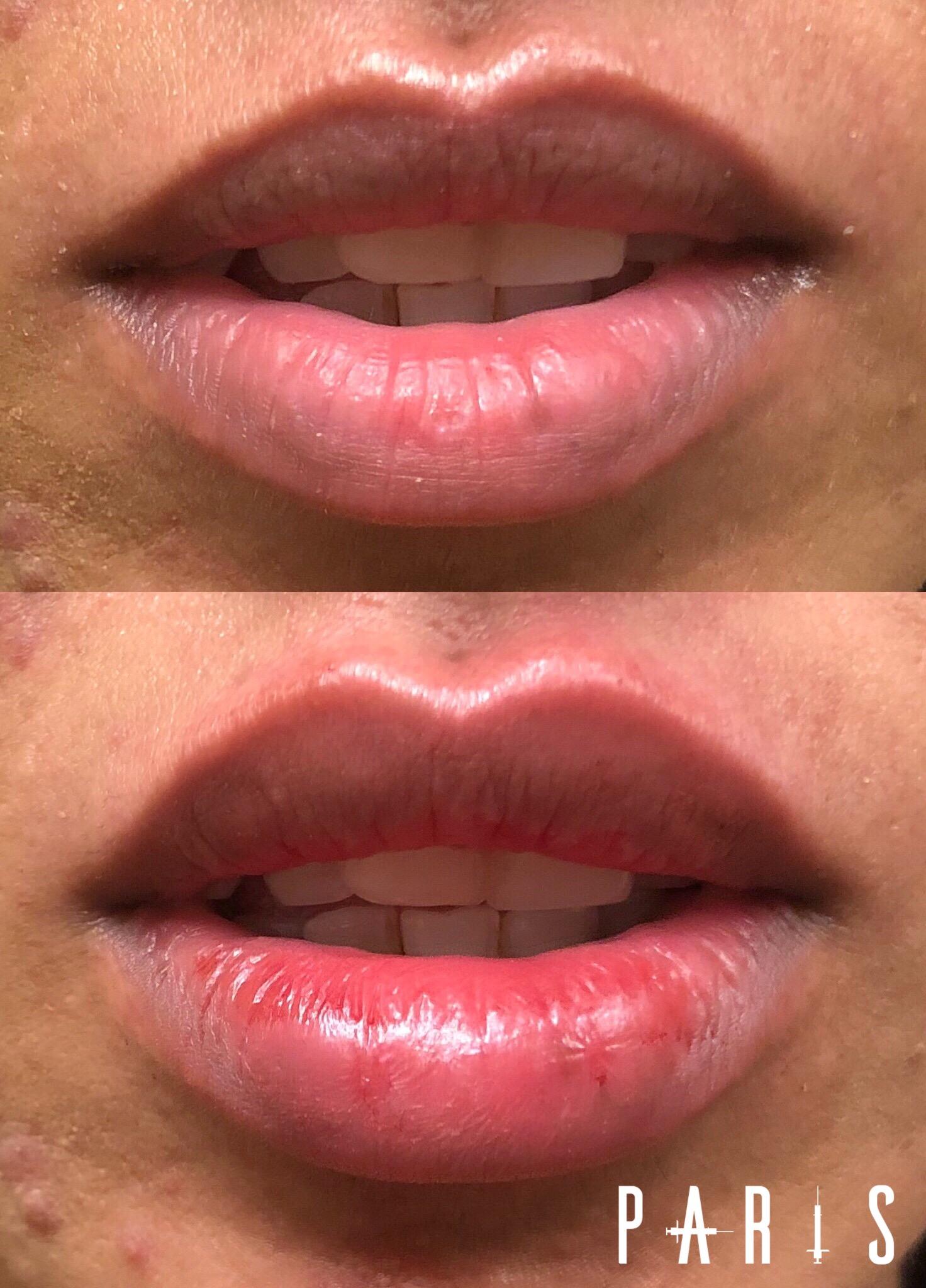 ParisPlump.Lips.Filler.Scottsdale.AZ.Beforeandafter.ParisInjectables.25