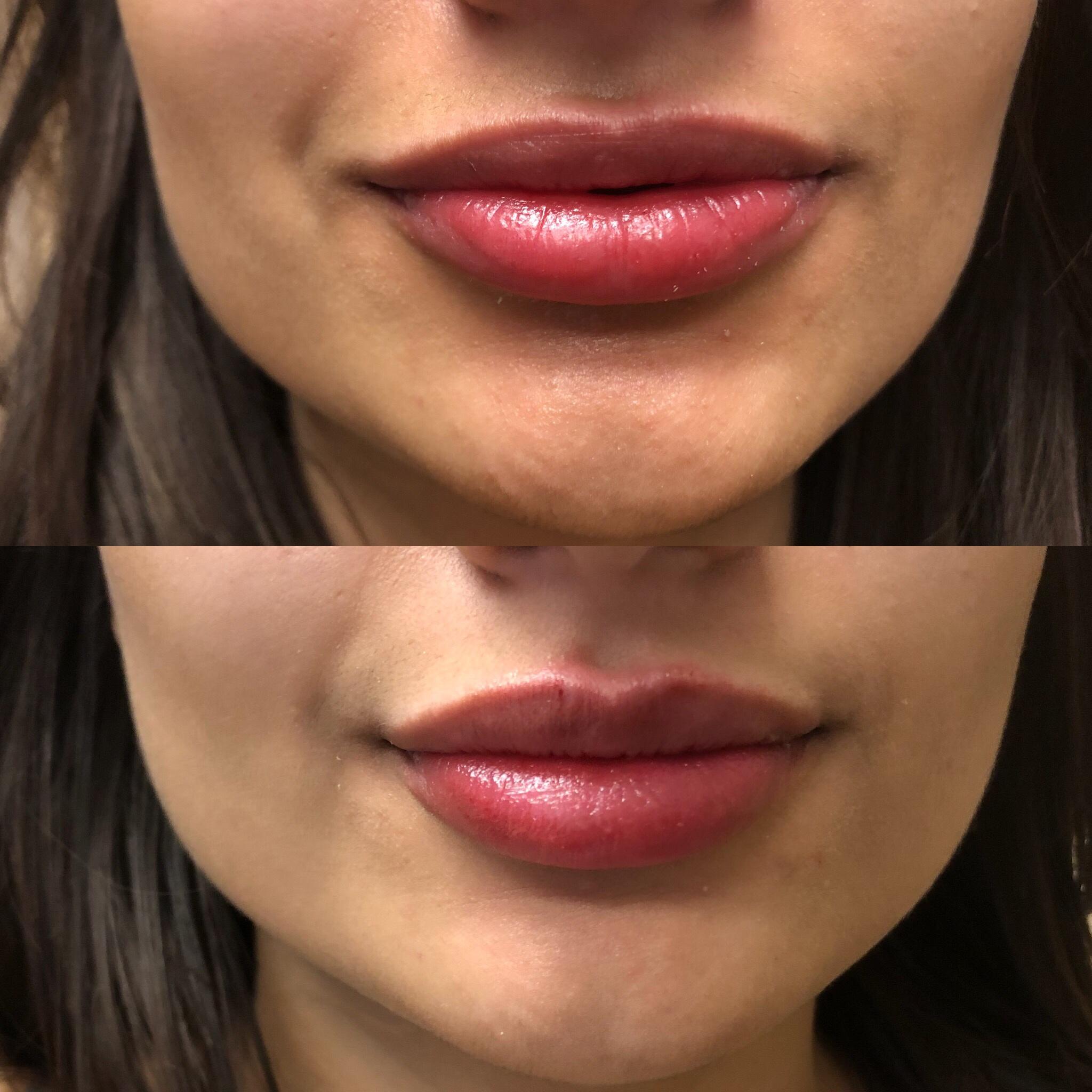 ParisPlump.Lips.Filler.Scottsdale.AZ.Beforeandafter.ParisInjectables.20