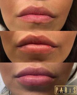 ParisPout.Lips.Filler.Scottsdale.AZ.Beforeandafter.ParisInjectables.8