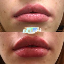 ParisPout.Lips.Filler.Scottsdale.AZ.Beforeandafter.ParisInjectables.15