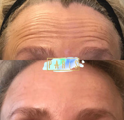 Forehead.Botox.Scottsdale.AZ.Beforeandafter.ParisInjectables.