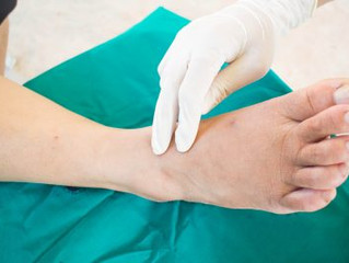 Foot Disorders Redondo Beach
