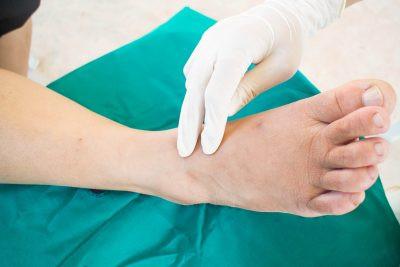 Foot Disorders Redondo Beach