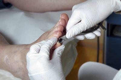 Local foot doctor Taurusa CA