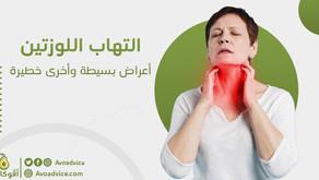 التهاب اللوزتين   أعراض بسيطة وأخرى خطيرة