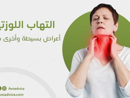 التهاب اللوزتين | أعراض بسيطة وأخرى خطيرة