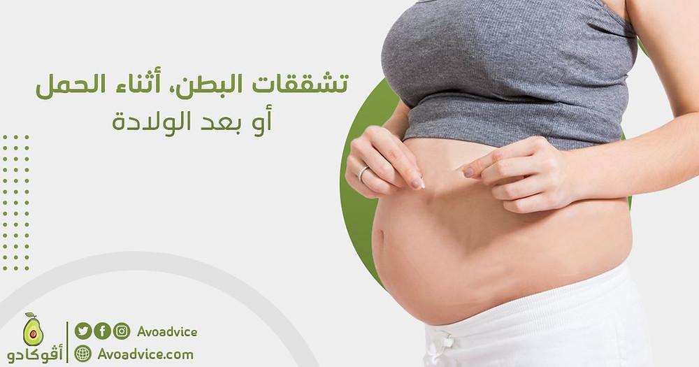 العلاج الجذري لتشققات البطن أثناء الحمل