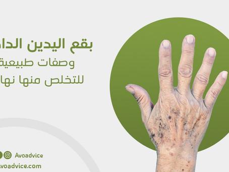 بقع اليدين الداكنة | وصفات طبيعية للتخلص منها نهائيًا
