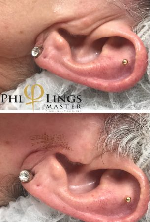PhiLings-Example-Image-Ear.1-305x450