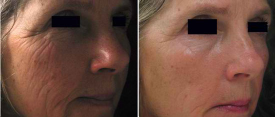dermapen-acne-scars-before-after-4-ruth-eaton