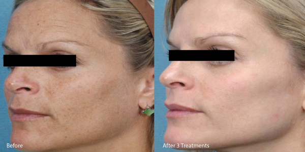 microneedle-before-and-after