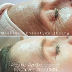 plasma pen forehead and DMN
