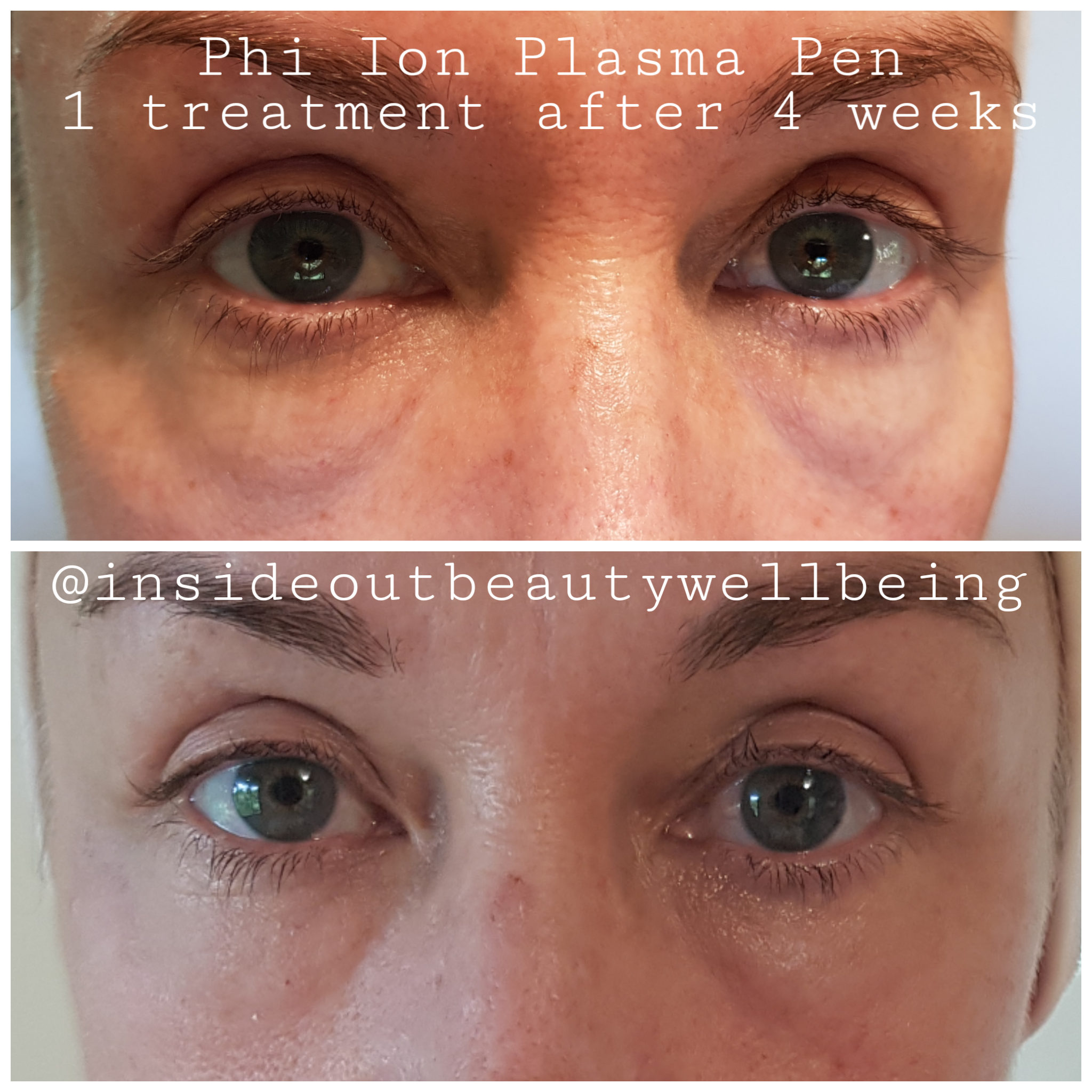 plasma pen under eye bags