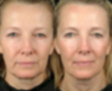 Advanced Skin Consultation Whangarei