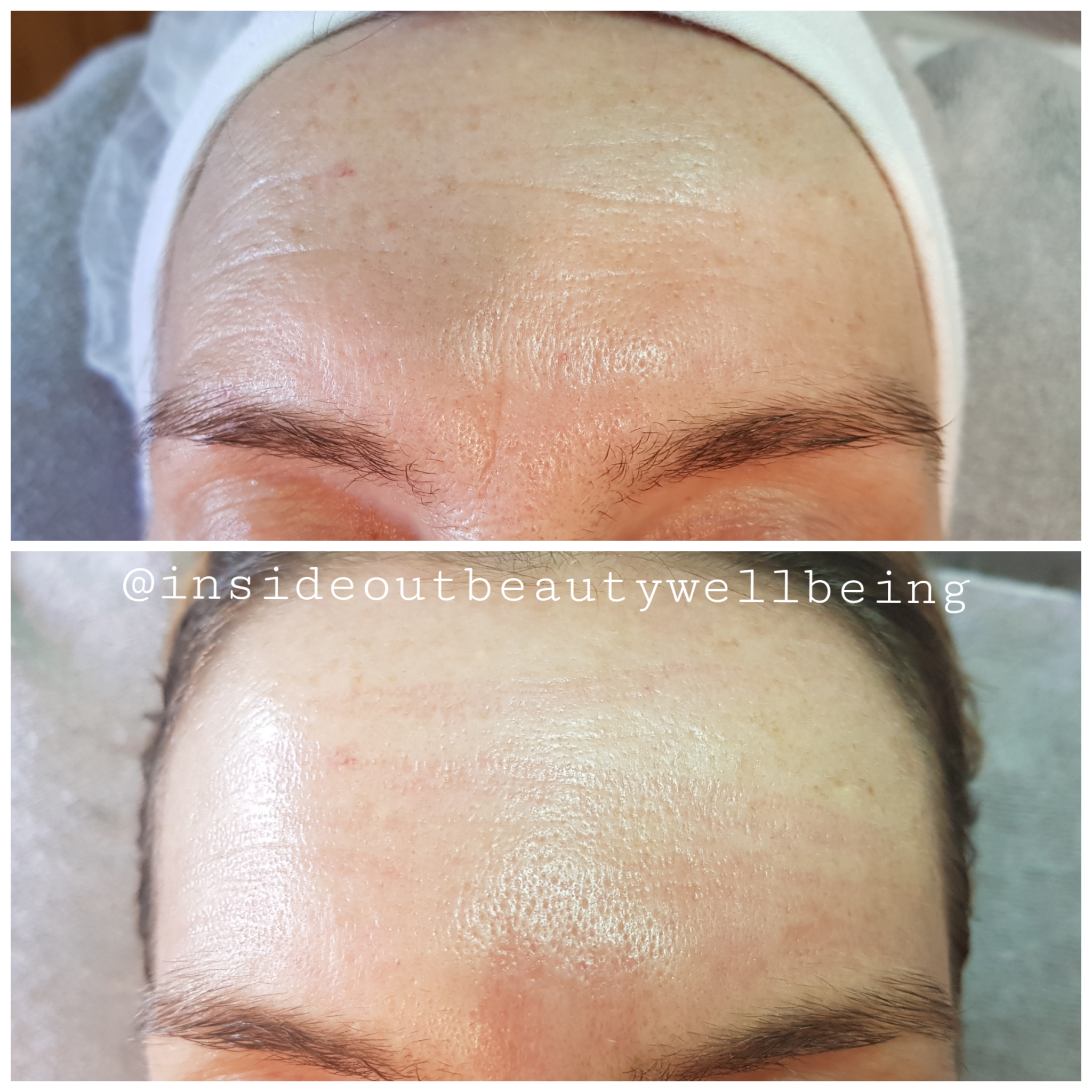 plasma pen forehead