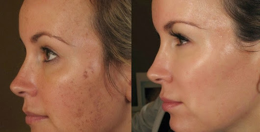 Dermapen women before and after