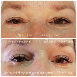 plasma pen eyelid lift
