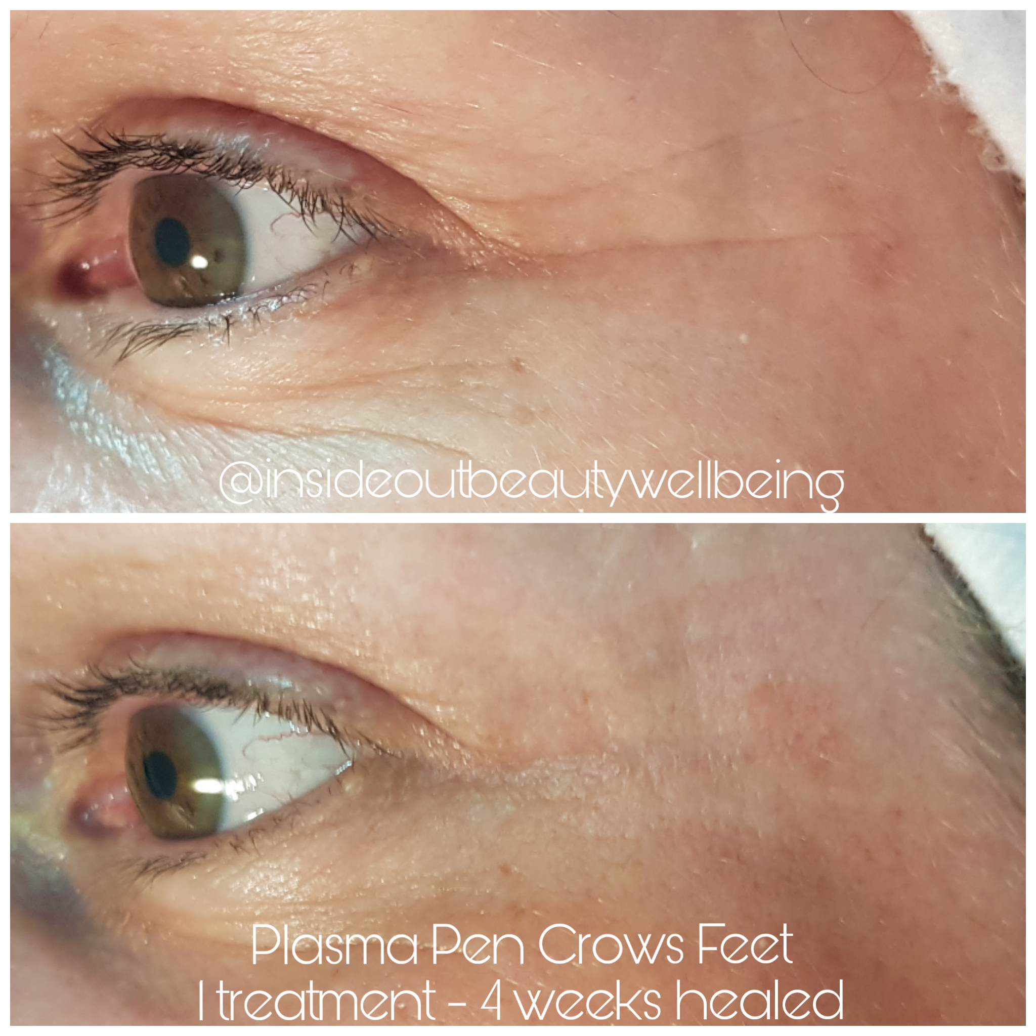 plasma pen crows feet