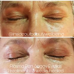 plasma pen saggy eyelids