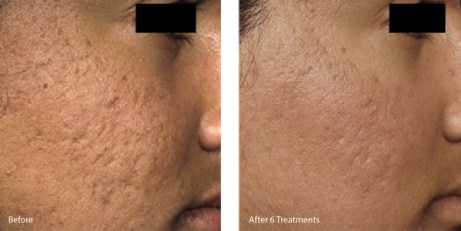 Microneedling-for-acne