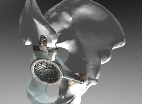LRS Launches CiS (Custom Implant Solutions)
