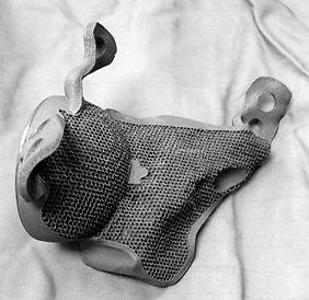 Custom Acetabulum Implant