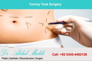 Tummy Tuck Surgery Treatment In Lahore