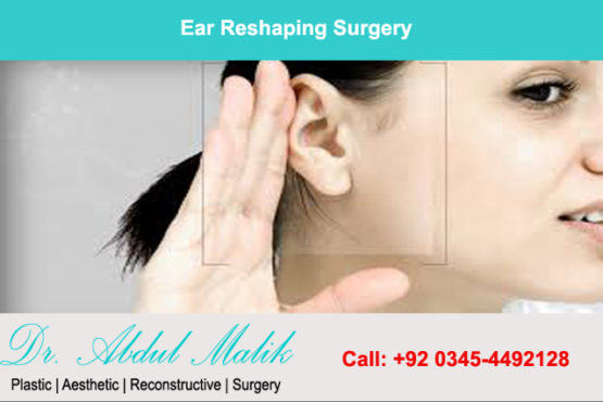 Dr.Abdul Malik the best plastic and cosmetic surgeon in Lahore performs the ear reshaping surgery at an affordable cost. In addition, it ranges from Rs. 50,000 to Rs. 80,000.