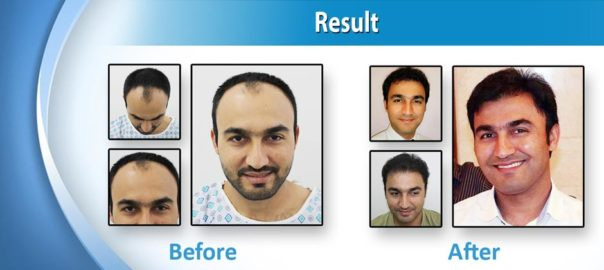Optimal result of Hair Transplant by DR. Abdul Malik Plastic Surgeon In Lahore