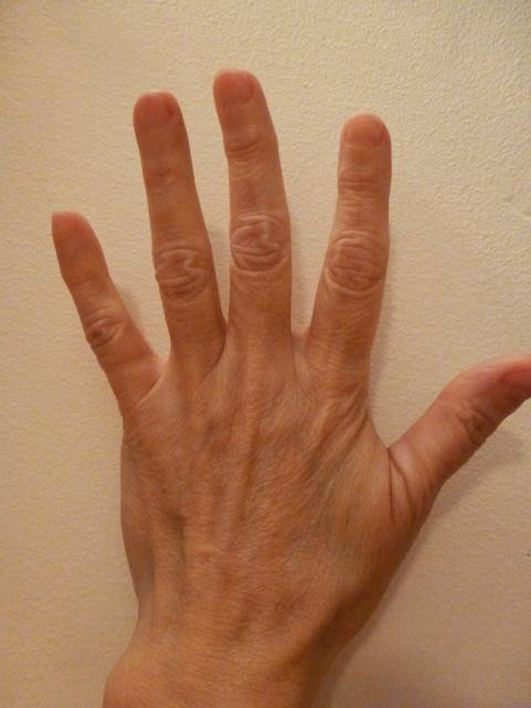 PHS hand.jpg