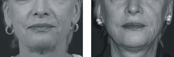 Diamond Wire Before and After