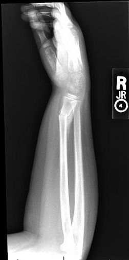 Fractured bone x-ray