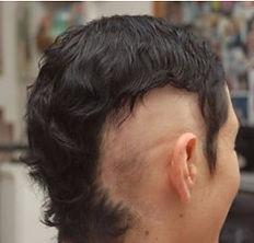 נשירת שיער לפני