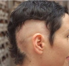 גורמים לנשירת שיער