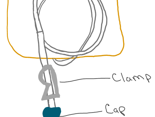 Dealing With a Hickman Line in a Baby