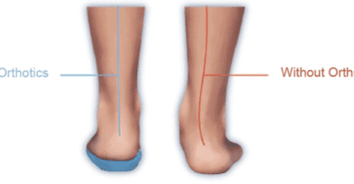 What Are Foot Orthotics?