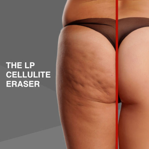 LP CELLULITE ERASER