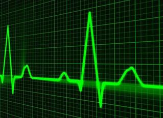 【疲勞監控】心率變異分析 (Heart Rate Variability)