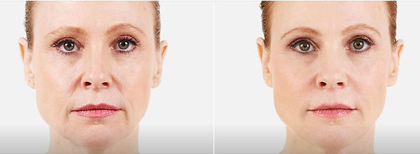 Juvederm Parentheses Lines and Wrinkles Treatment Injection Dermal Filler Smoothing Before and After