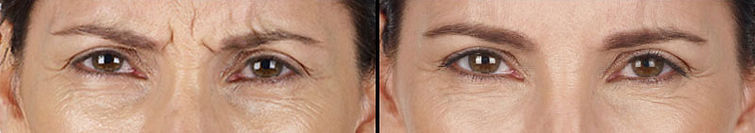 XEOMIN Treatment Before After Glabellar Lines