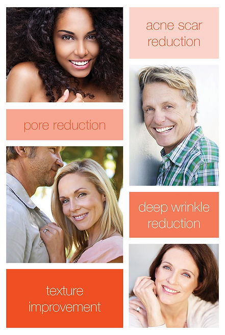Venus Viva acne scar reduction, pore reduction, deep wrinkle reductin and texture improvemen