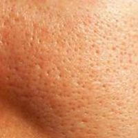Enlarged skin pores on face close-up