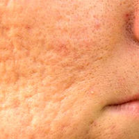 Skin texture close-up of acne and blemish scarring