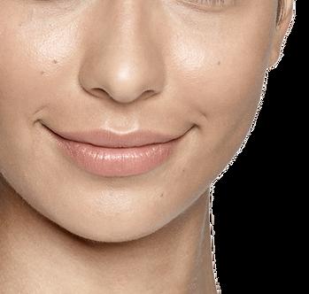 Perlane Restylane Lyft Moderate Severe Facial Wrinkles Folds Treatment Results Correct Shape Cheek