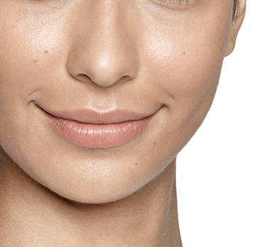 Perlane Restylane Lyft Moderate Severe Facial Wrinkles Folds Treatment Results Correct Shape Cheek