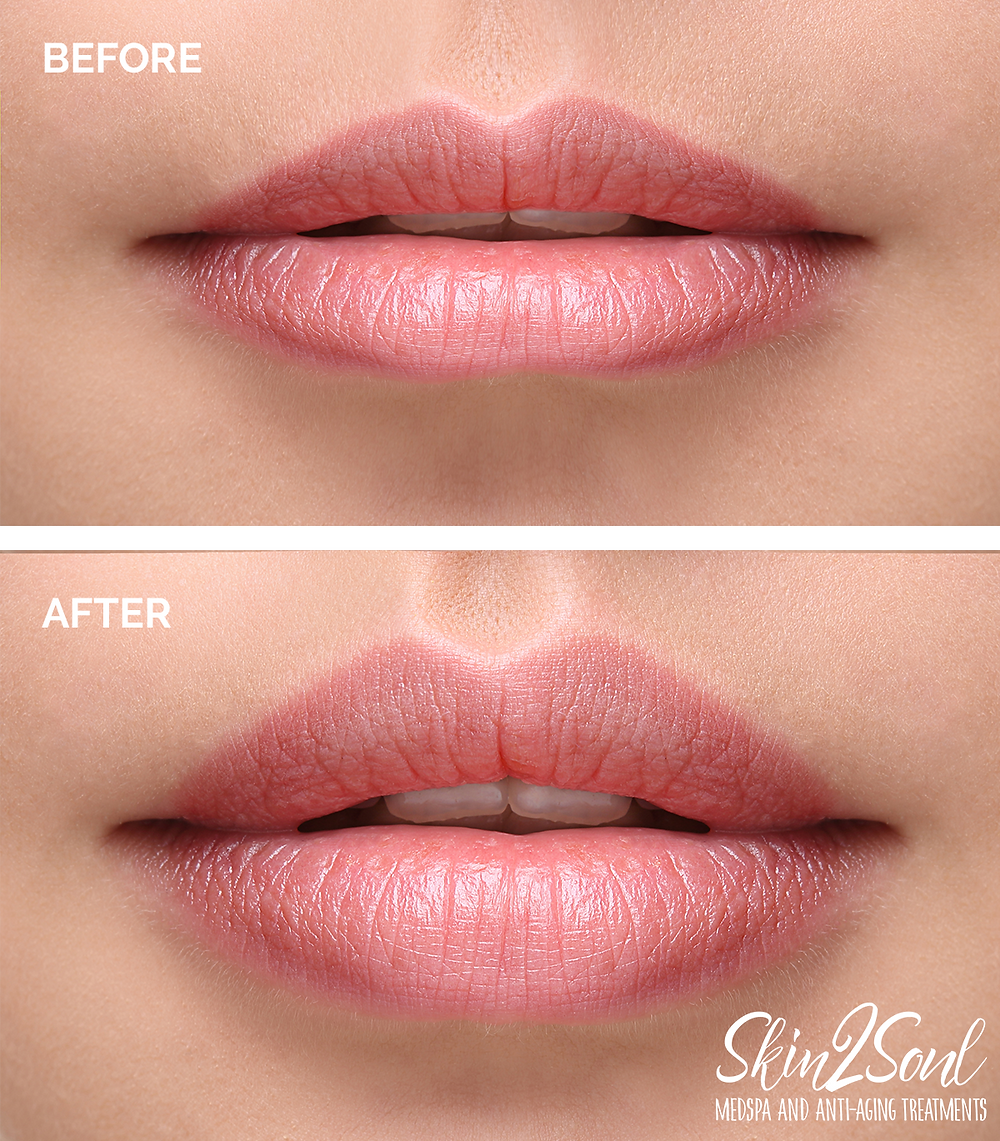 Lip Injections Fillers Before and After Photo Results Lips Plump Full MedSpa