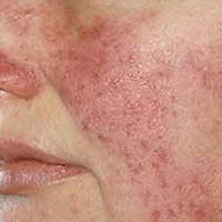 Rosacea red tone and blotchy skin close-up